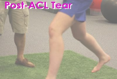 post acl tear treatement physiotherapy sports clinic oakville mississauga