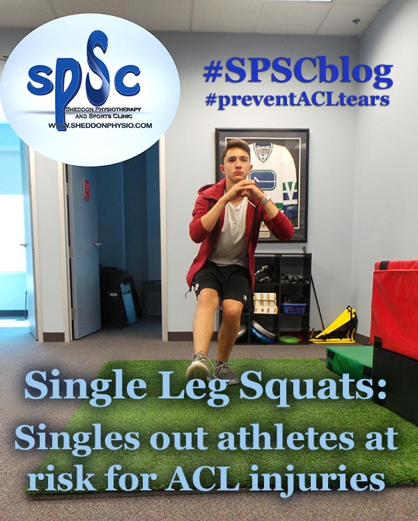 Single Leg Squats: Singles out athletes at risk for ACL injuries